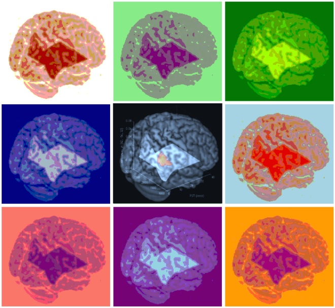 "This brain imaging graphic was used to advertise a conference held in April 2015 called ""Images of the Mind: new frontiers in brain imaging"". http://cnc.unipd.it/images-mind-new-frontiers-brain-imaging-milan-9-10-april-2015/"
